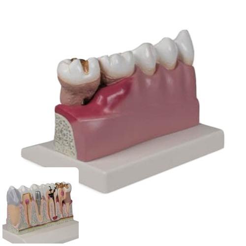 M ZIMMER 치아모형 D250 - 이빨모형