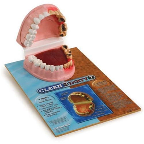 M HEALTH EDCO 치아비교모형 79650 - 치아모형