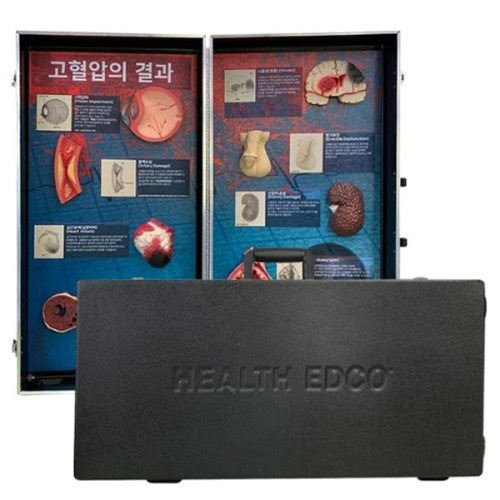 M HEALTH EDCO 고혈압의 결과 78927 - 고혈압모형