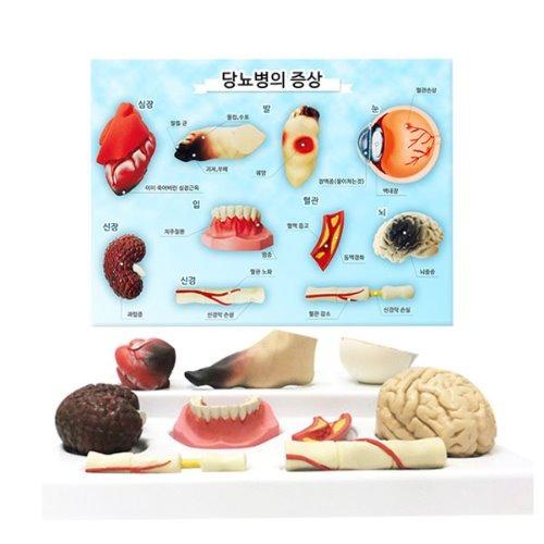 M HEALTH EDCO 당뇨병에의한 질병 3D모형 78792